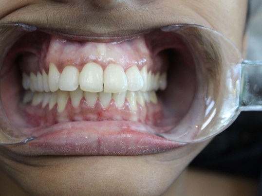 McKinney Woman gets Braces After